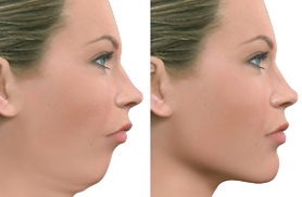 tmj surgery cost in india